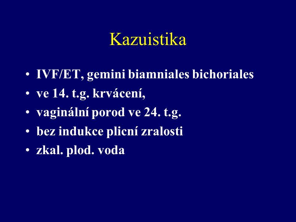 Kazuistika IVF/ET, gemini biamniales bichoriales ve 14. t.g. krvácení, vaginální porod ve 24. t.g. bez indukce plicní zralosti zkal. plod. voda