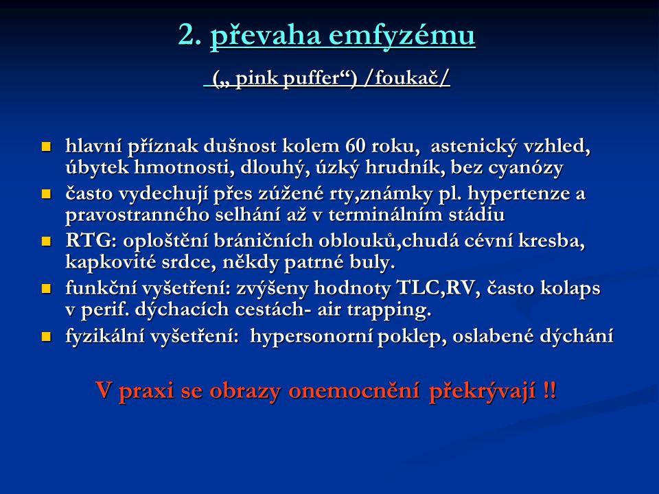"""2. převaha emfyzému ("""" pink puffer"""") /foukač/ hlavní příznak dušnost kolem 60 roku, astenický vzhled, úbytek hmotnosti, dlouhý, úzký hrudník, bez cyan"""