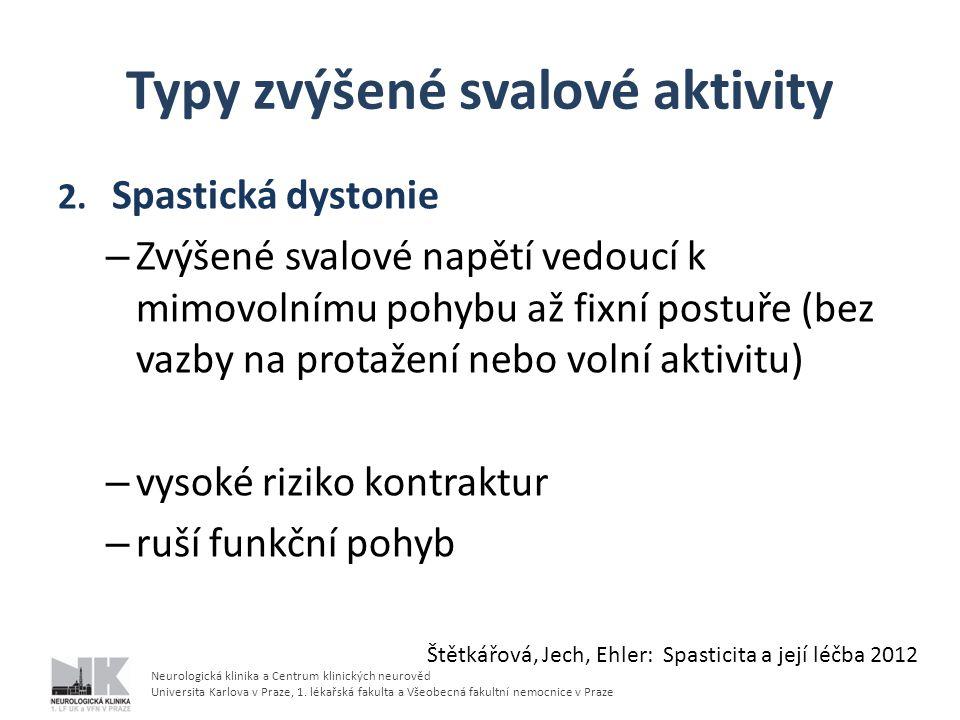 Typy zvýšené svalové aktivity 3.