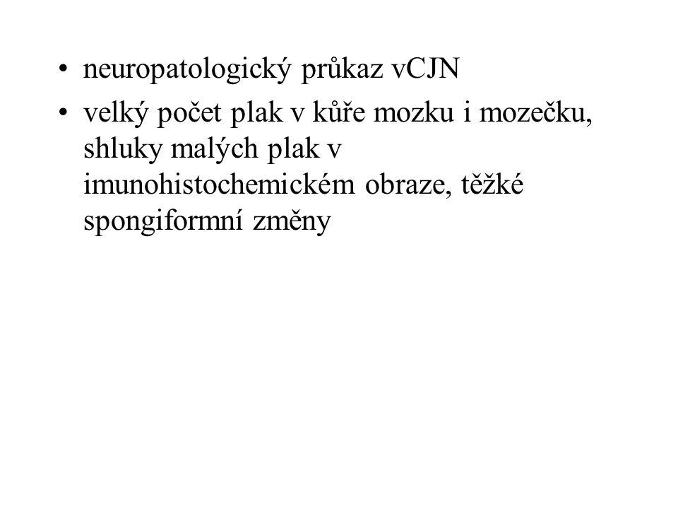 neuropatologický průkaz vCJN velký počet plak v kůře mozku i mozečku, shluky malých plak v imunohistochemickém obraze, těžké spongiformní změny