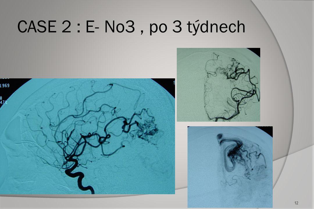 CASE 2: E-No2 zadní cirkulace, týden později 11
