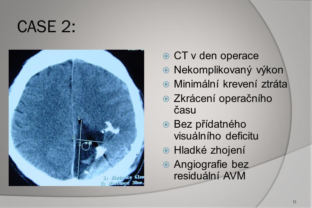 CASE 2 :MR na začátku a po embolizacích: 14