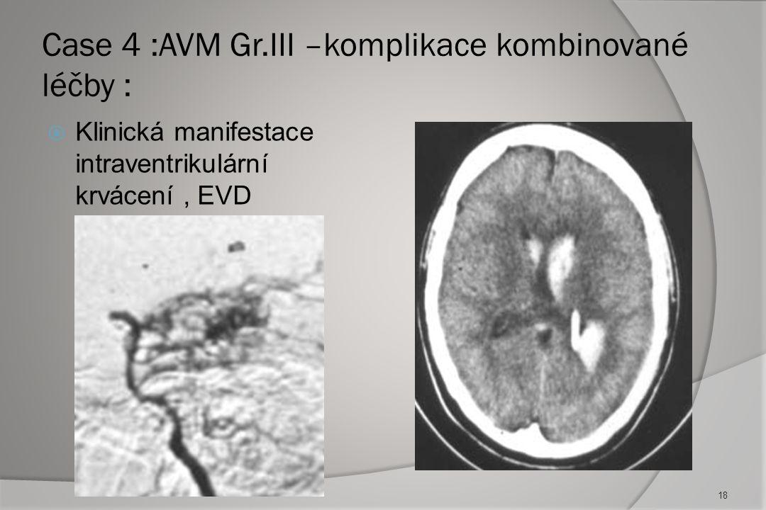 CASE 3: AVM Gr.III + 7 aneurysmat, manifestace SAH, H.H. V, Fisher I : 17 Zdroj krvácení neznámý Endovaskulární výkon přerušen pro těžké vasospasmy s