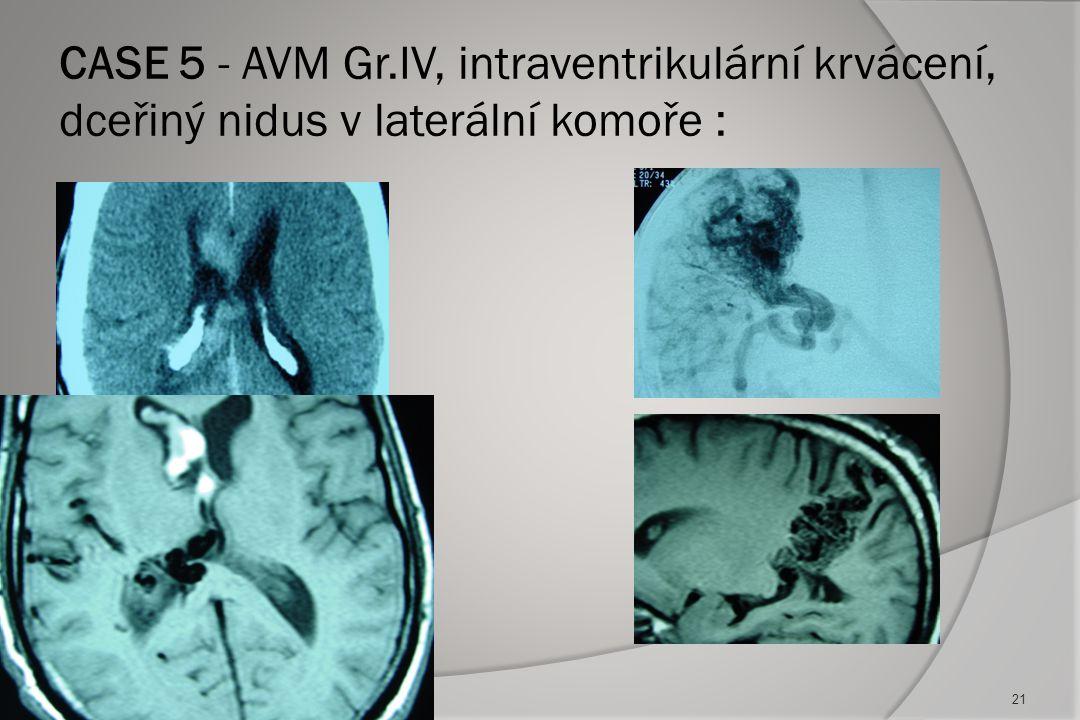 Case 4: komplikace - chronický hydrocefalus a chronický subdurální hematom :  VP drén  Drenáž HSD  Outcome - excellent 20