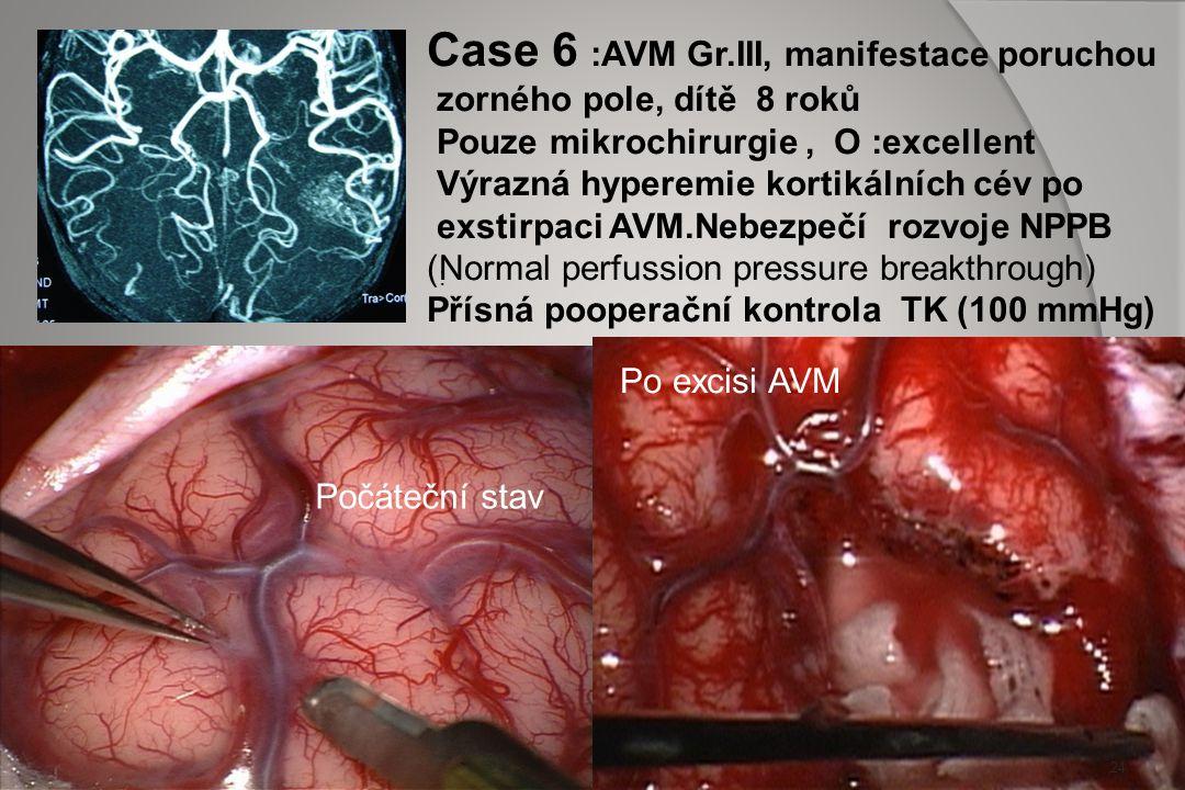 CASE 5: trapovaný temporální roh komory : 23 Pooperační angiografie - radikalita potvrzena CT 1. post.op. den 4 týdny po operaci rozvoj hemiparesy, -
