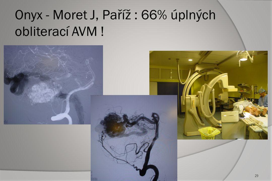 Embolické materiály v současnosti:  NBCA ( N-butyl-cyanoacrylate) + Lipiodol 18-100% koncentrace - častý  PVA (polyvinylalcohol microparticles) - vý