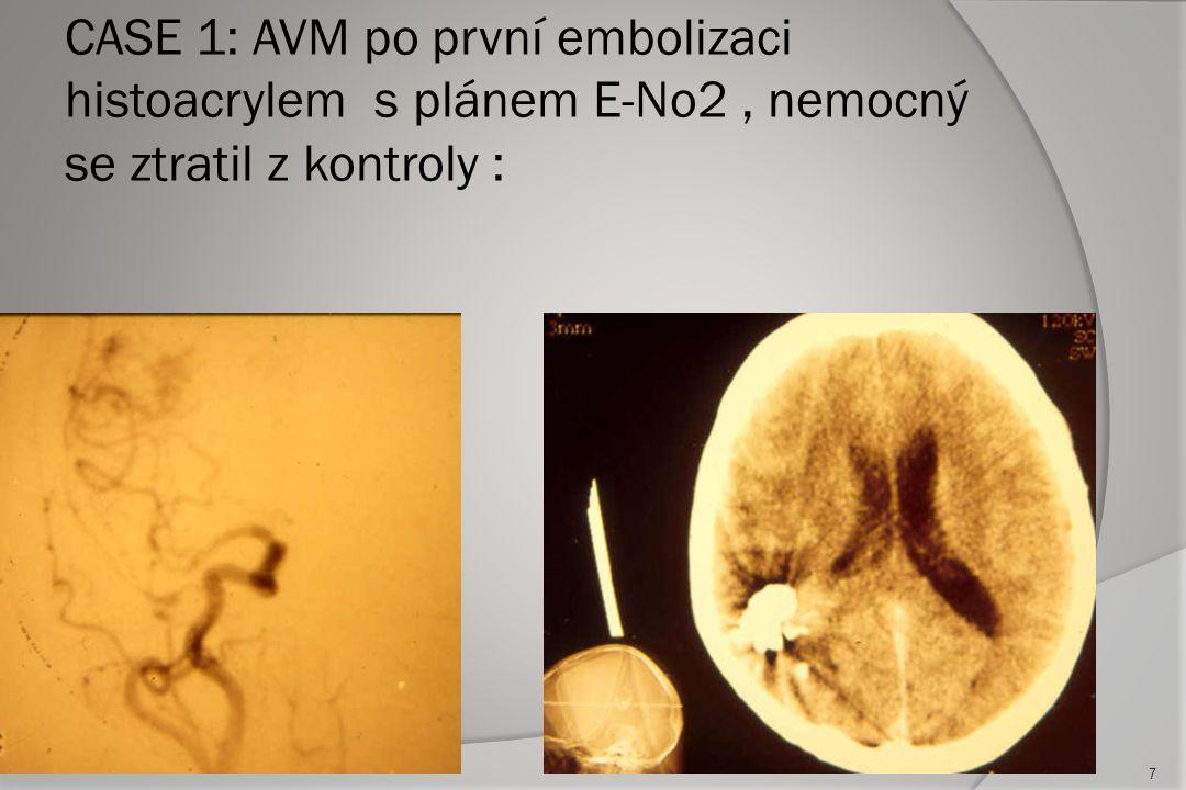 Současné podmínky pro parciální léčbu :  Slabé místo AVM – cíl léčby (intranidální aneurysma, intranidální high flow AV fistula, intraventrikulární část AVM, durální feeder, venosní stenosa )  Parciální embolizace nesníží riziko krvácení (3-7%)  Obliterace více než 1/3 nidu AVM ale již efektivně redukuje incidenci krvácení 27