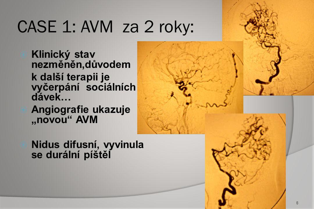 Case 4 :AVM Gr.III –komplikace kombinované léčby :  Klinická manifestace intraventrikulární krvácení, EVD 18