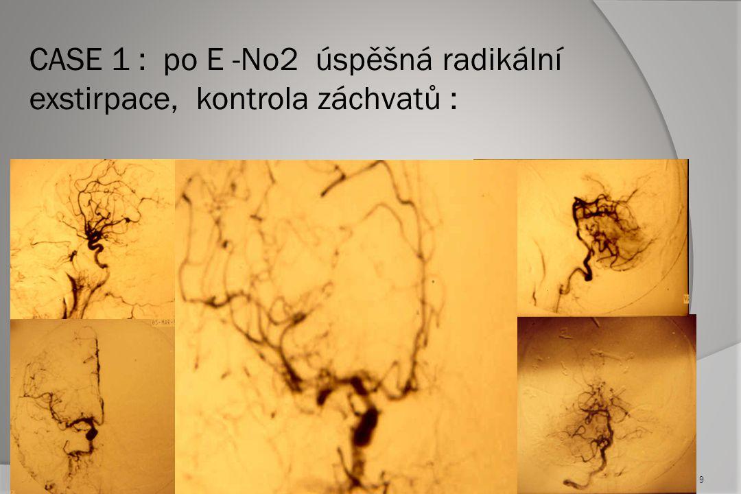 Case 4 : komplikace kombinované léčby  NCA v nidu na CT  Mesencephalická lése na MR  Ztráta vědomí po embolizaci  Plná úprava před definitivní chirurgickou exstirpací AVM 19
