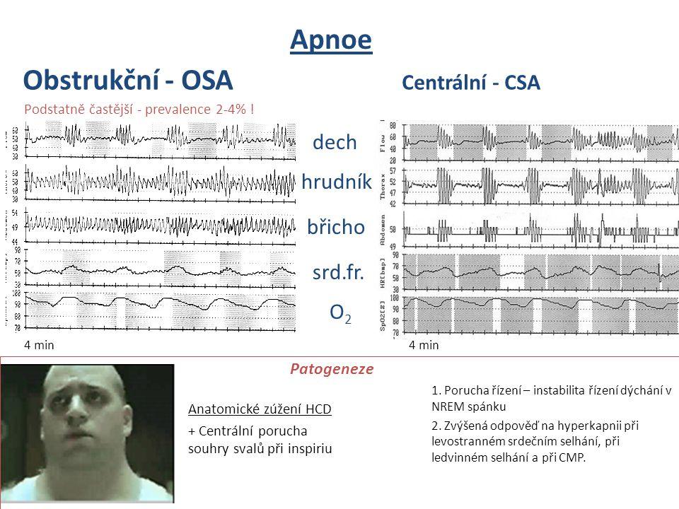 dech hrudník břicho srd.fr. O2O2 4 min Apnoe Obstrukční - OSA Centrální - CSA Anatomické zúžení HCD + Centrální porucha souhry svalů při inspiriu 1. P