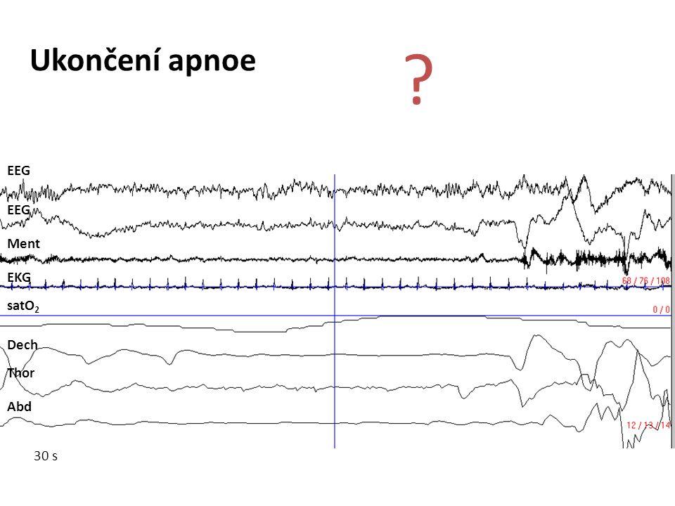 EEG Ment EKG satO 2 Dech Thor Abd Ukončení apnoe ? 30 s