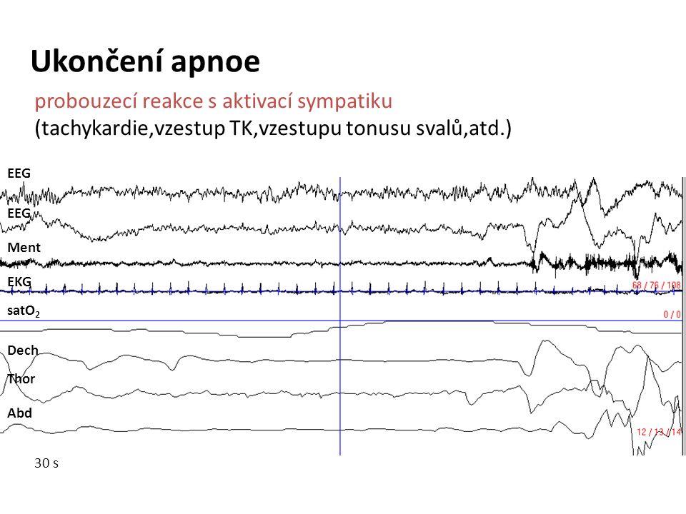 EEG Ment EKG satO 2 Dech Thor Abd Ukončení apnoe probouzecí reakce s aktivací sympatiku (tachykardie,vzestup TK,vzestupu tonusu svalů,atd.) 30 s
