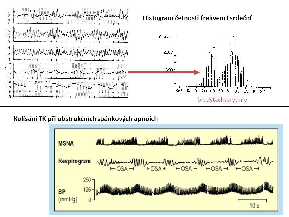 Histogram četnosti frekvencí srdeční bradytachyarytmie Kolísání TK při obstrukčních spánkových apnoích