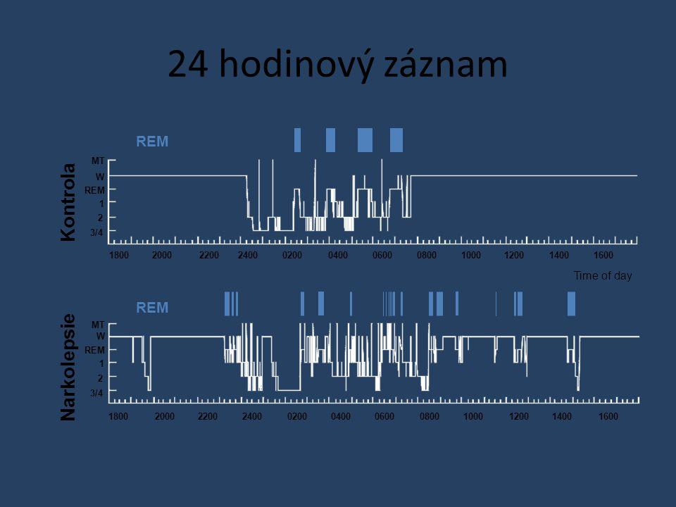 Time of day 24 hodinový záznam Kontrola Narkolepsie 180020002200240002000400060008001000120014001600 MT W REM 1 2 3/4 18002000220024000200040006000800