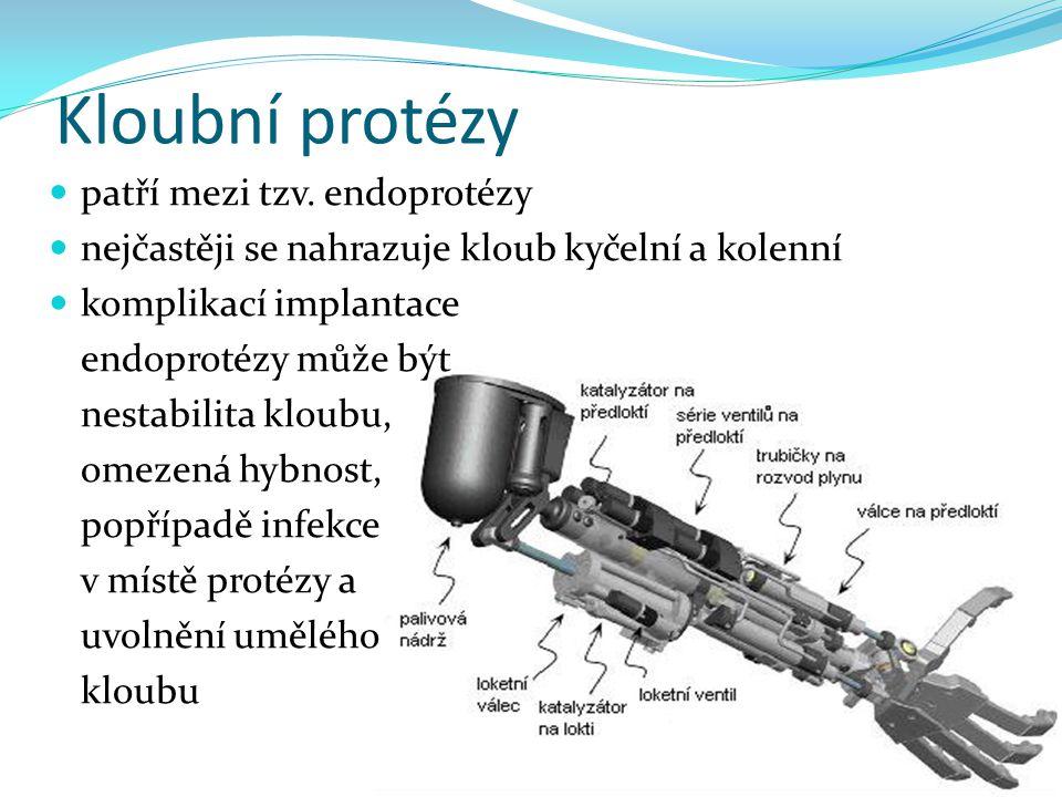 Kloubní protézy patří mezi tzv. endoprotézy nejčastěji se nahrazuje kloub kyčelní a kolenní komplikací implantace endoprotézy může být nestabilita klo