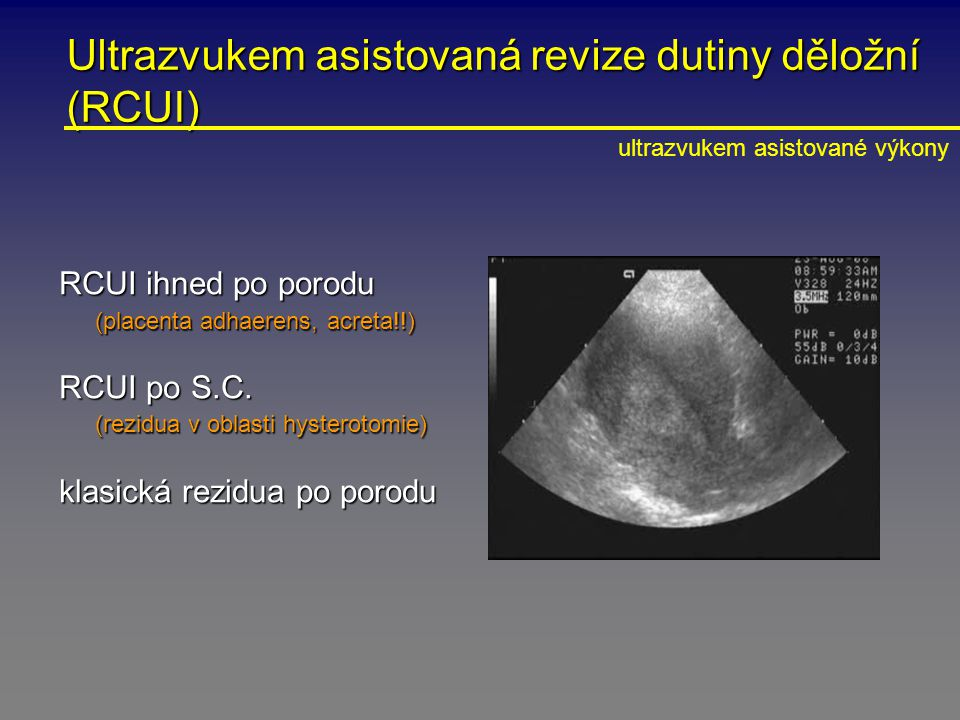 Ultrazvukem asistovaná revize dutiny děložní (RCUI) RCUI ihned po porodu (placenta adhaerens, acreta!!) RCUI po S.C. (rezidua v oblasti hysterotomie)