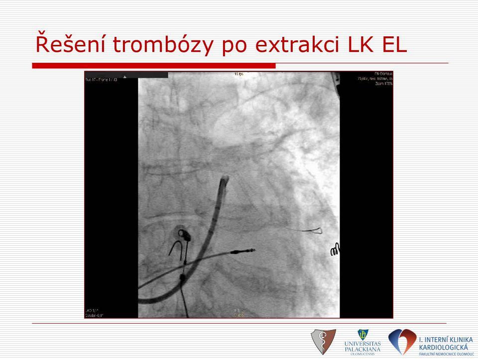 Řešení trombózy po extrakci LK EL