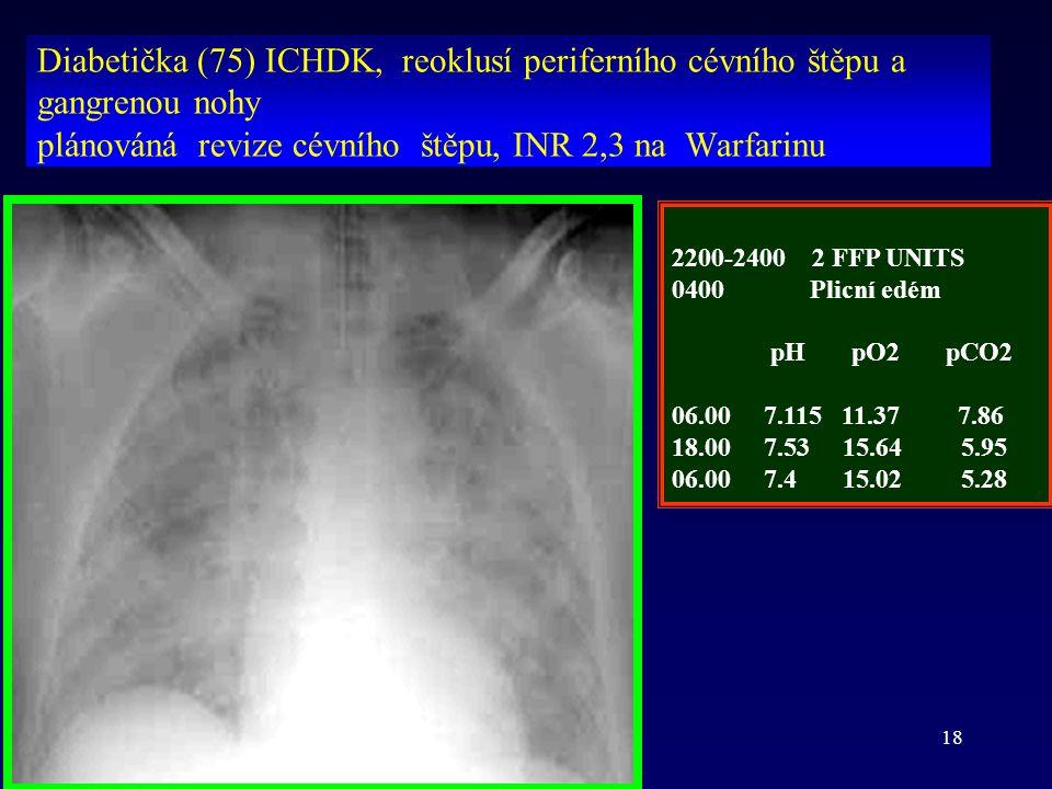 ih BBr 200818 Diabetička (75) ICHDK, reoklusí periferního cévního štěpu a gangrenou nohy plánováná revize cévního štěpu, INR 2,3 na Warfarinu 2200-240