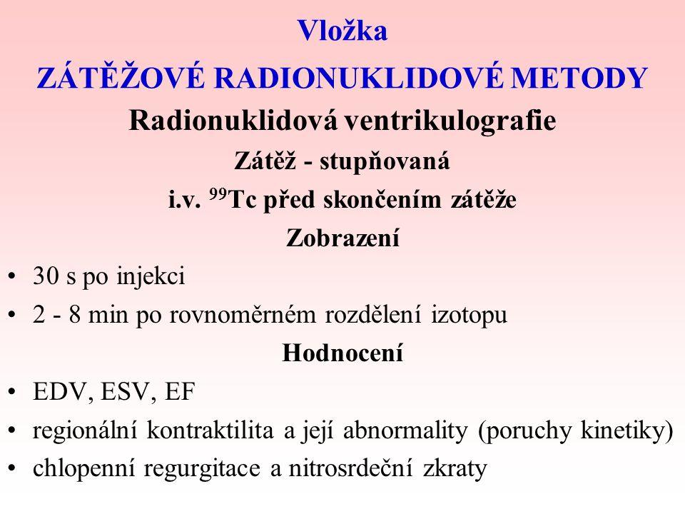 """ICHS Mechanické projevy –souvisejí s nedostatkem energie –souvisejí s imobilizací (""""znehybněním) kalcia v aktinomyozinovém komplexu vlivem acidózy –nejprve diastolická porucha a zvýšení plnícího tlaku –potom systolická porucha se změnou kinetiky LK Projevy vyvolané zátěží:"""