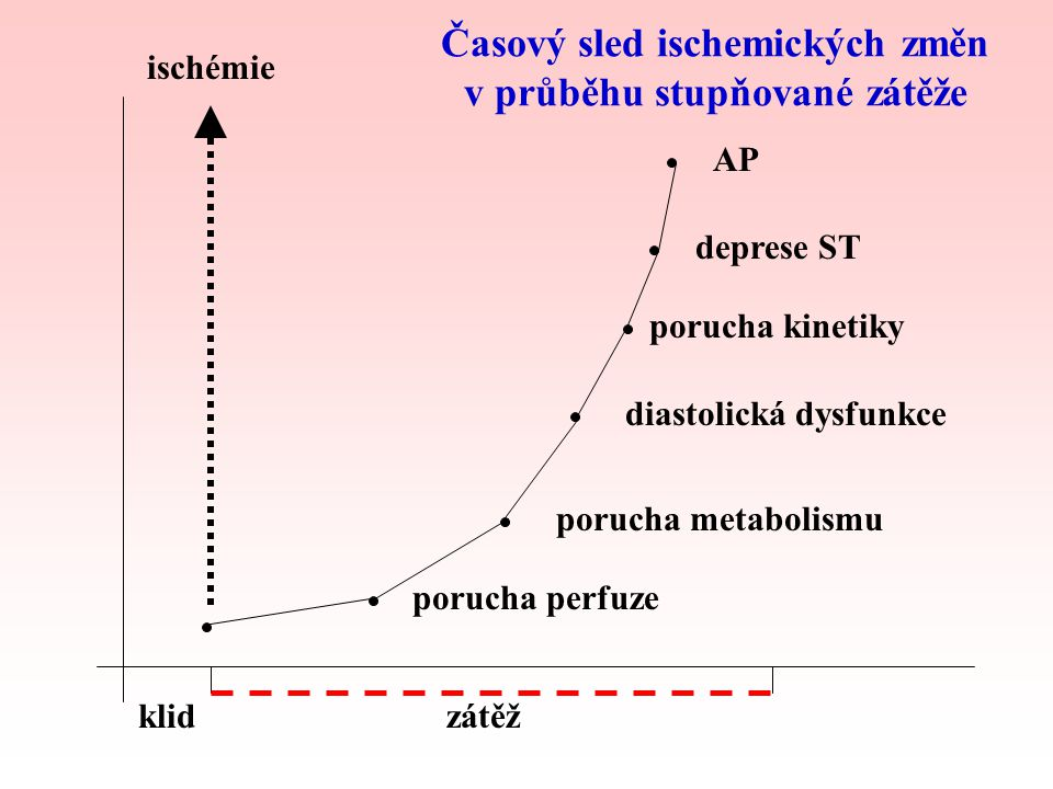 ICHS Elektrické změny –změna polarizace buněčných membrán –EKG - subendokardiální ischémie - deprese ST –EKG - epikardová nebo transmurální ischémie - elevace ST Projevy vyvolané zátěží: