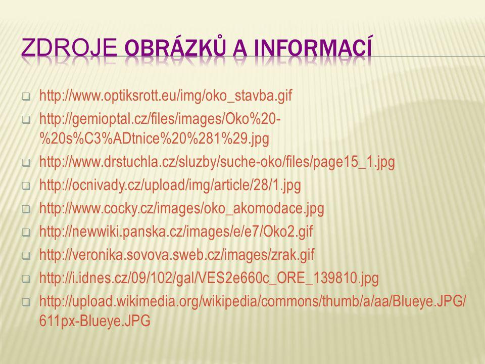  http://www.optiksrott.eu/img/oko_stavba.gif  http://gemioptal.cz/files/images/Oko%20- %20s%C3%ADtnice%20%281%29.jpg  http://www.drstuchla.cz/sluzb