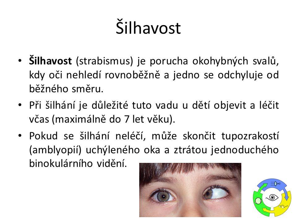 Šilhavost (strabismus) je porucha okohybných svalů, kdy oči nehledí rovnoběžně a jedno se odchyluje od běžného směru. Při šilhání je důležité tuto vad