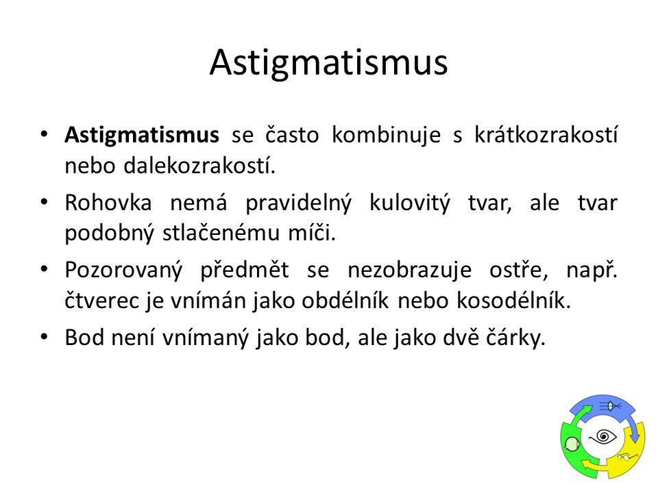 Astigmatismus se často kombinuje s krátkozrakostí nebo dalekozrakostí. Rohovka nemá pravidelný kulovitý tvar, ale tvar podobný stlačenému míči. Pozoro