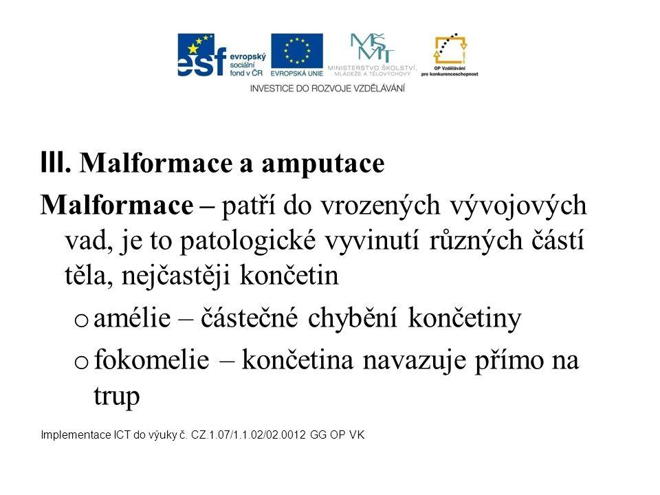 III. Malformace a amputace Malformace – patří do vrozených vývojových vad, je to patologické vyvinutí různých částí těla, nejčastěji končetin o amélie