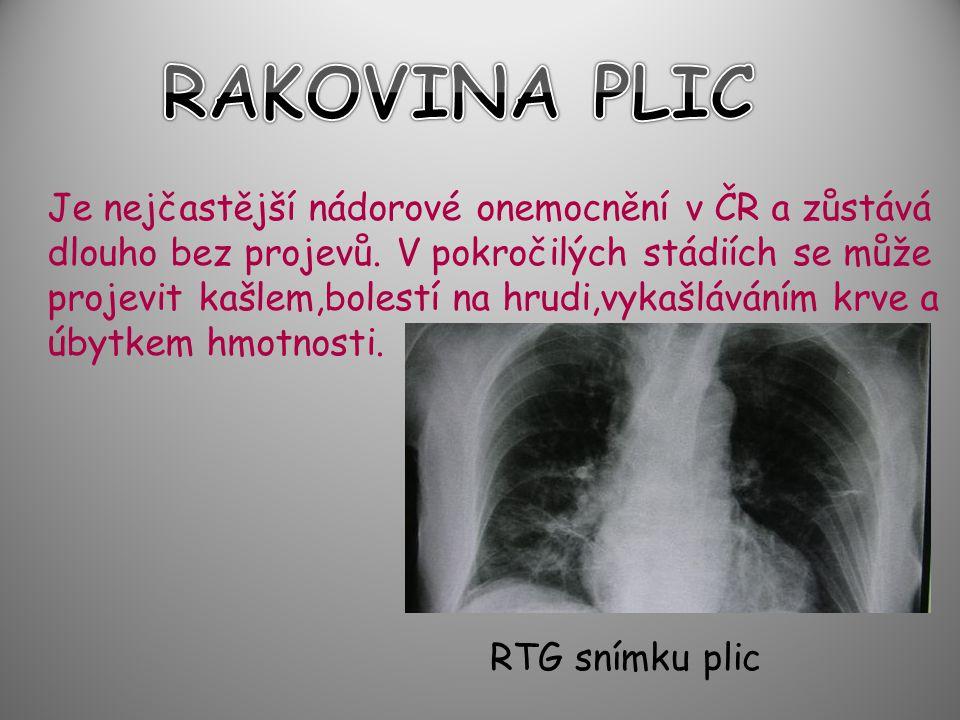 Je nejčastější nádorové onemocnění v ČR a zůstává dlouho bez projevů. V pokročilých stádiích se může projevit kašlem,bolestí na hrudi,vykašláváním krv