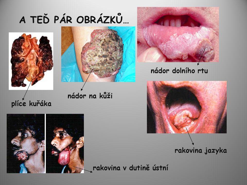 A TEĎ PÁR OBRÁZKŮ… plíce kuřáka nádor na kůži nádor dolního rtu rakovina v dutině ústní rakovina jazyka