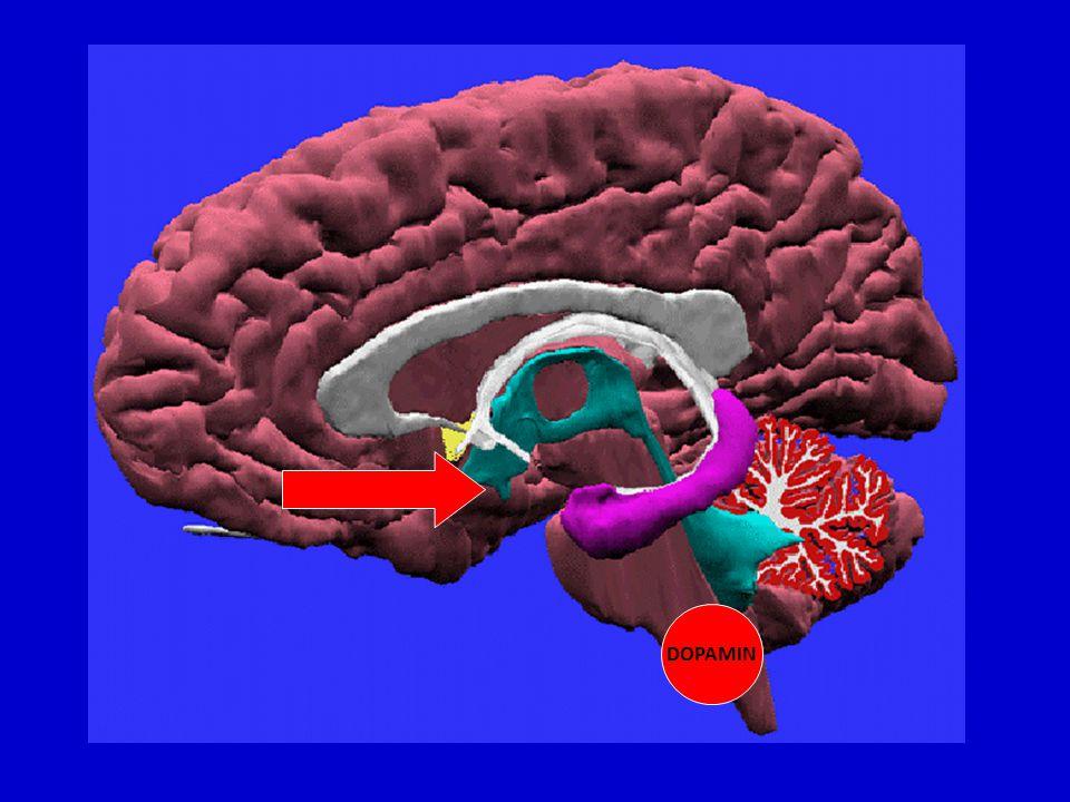 Alzheimerova demence geny a prostředí ? prevence???