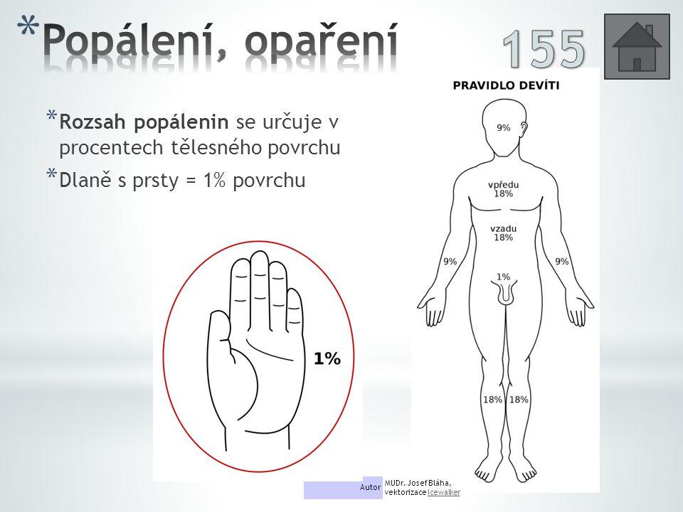 * Rozsah popálenin se určuje v procentech tělesného povrchu * Dlaně s prsty = 1% povrchu Autor MUDr.