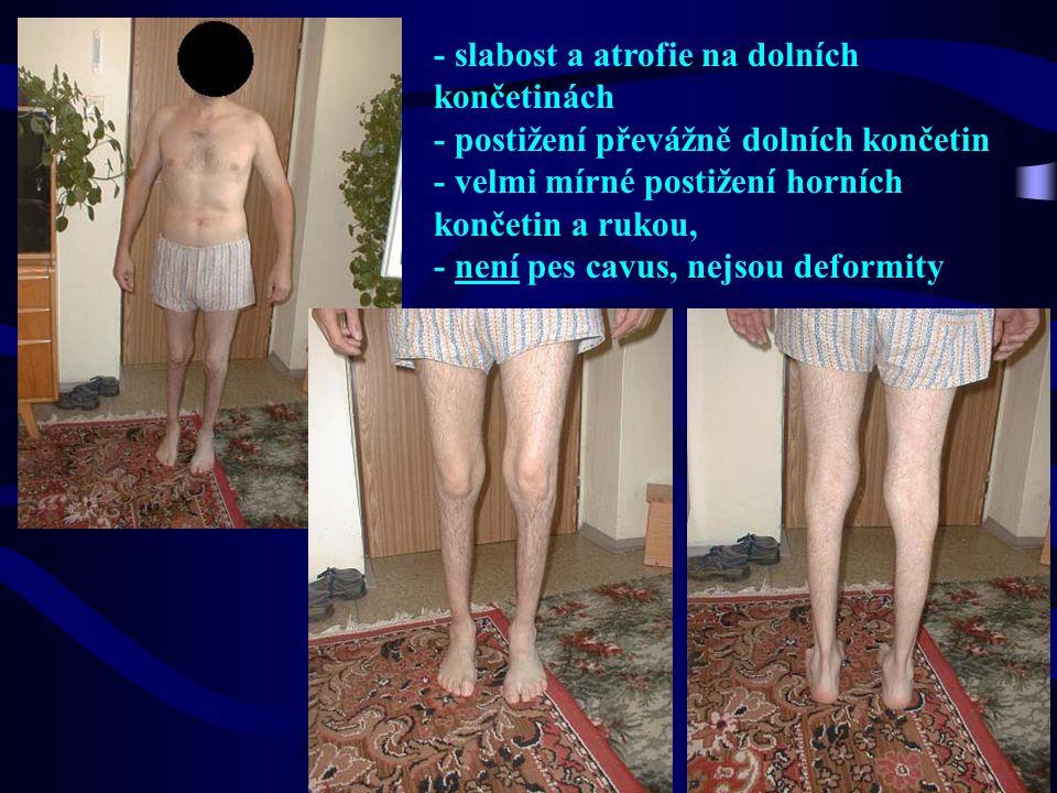 - slabost a atrofie na dolních končetinách - postižení převážně dolních končetin - velmi mírné postižení horních končetin a rukou, - není pes cavus, n