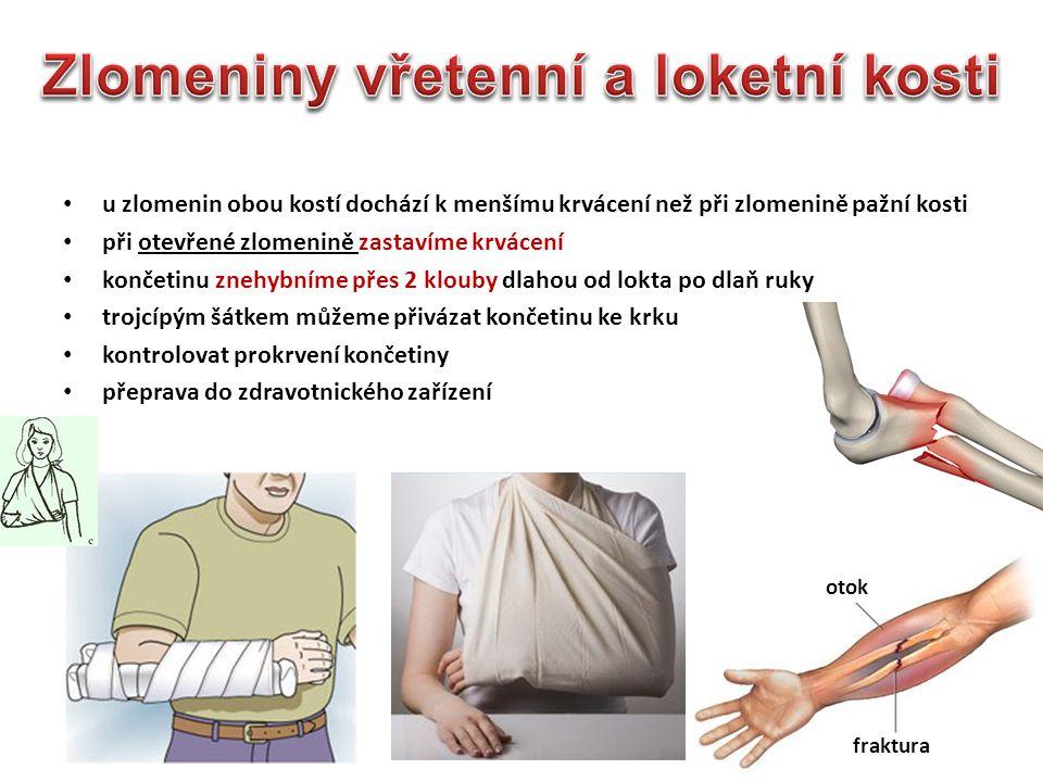 u zlomenin obou kostí dochází k menšímu krvácení než při zlomenině pažní kosti při otevřené zlomenině zastavíme krvácení končetinu znehybníme přes 2 k
