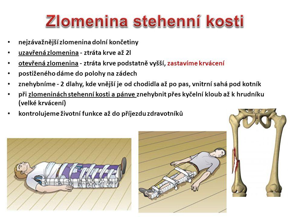 nejzávažnější zlomenina dolní končetiny uzavřená zlomenina - ztráta krve až 2l otevřená zlomenina - ztráta krve podstatně vyšší, zastavíme krvácení po