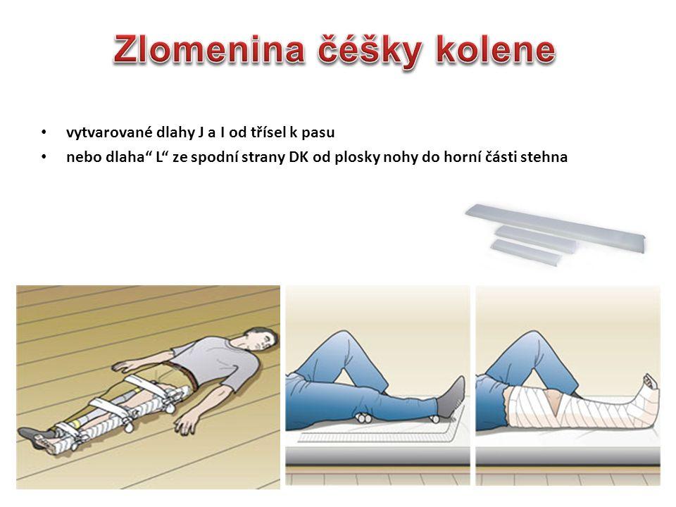 """vytvarované dlahy J a I od třísel k pasu nebo dlaha"""" L"""" ze spodní strany DK od plosky nohy do horní části stehna"""