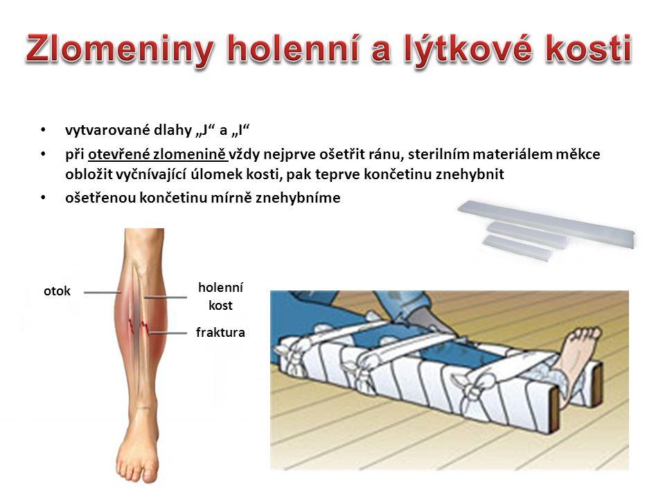 """vytvarované dlahy """"J"""" a """"I"""" při otevřené zlomenině vždy nejprve ošetřit ránu, sterilním materiálem měkce obložit vyčnívající úlomek kosti, pak teprve"""