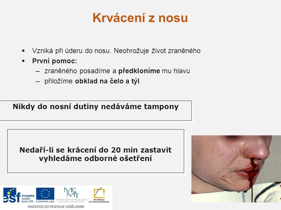 Krvácení z nosu  Vzniká při úderu do nosu. Neohrožuje život zraněného  První pomoc: –zraněného posadíme a předkloníme mu hlavu –přiložíme obklad na