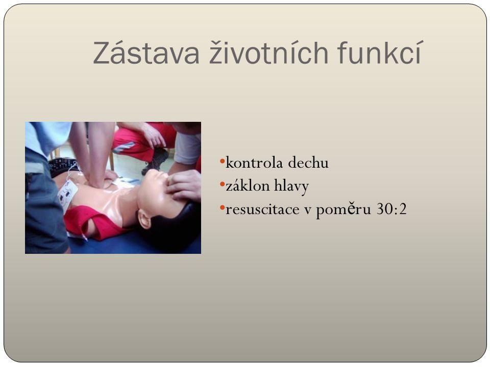 Zástava životních funkcí kontrola dechu záklon hlavy resuscitace v pom ě ru 30:2