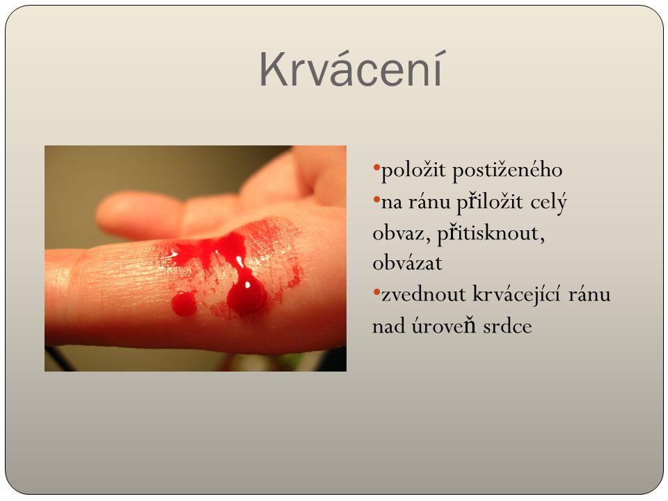 Krvácení položit postiženého na ránu p ř iložit celý obvaz, p ř itisknout, obvázat zvednout krvácející ránu nad úrove ň srdce