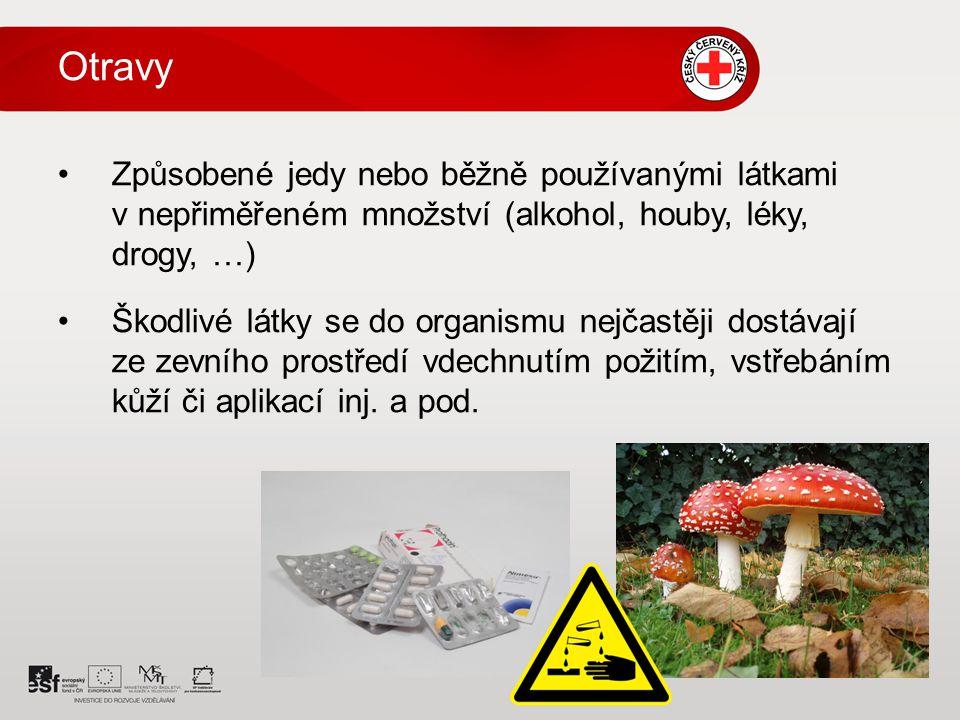 Otravy – všeobecná pravidla Dbát na vlastní bezpečnost.