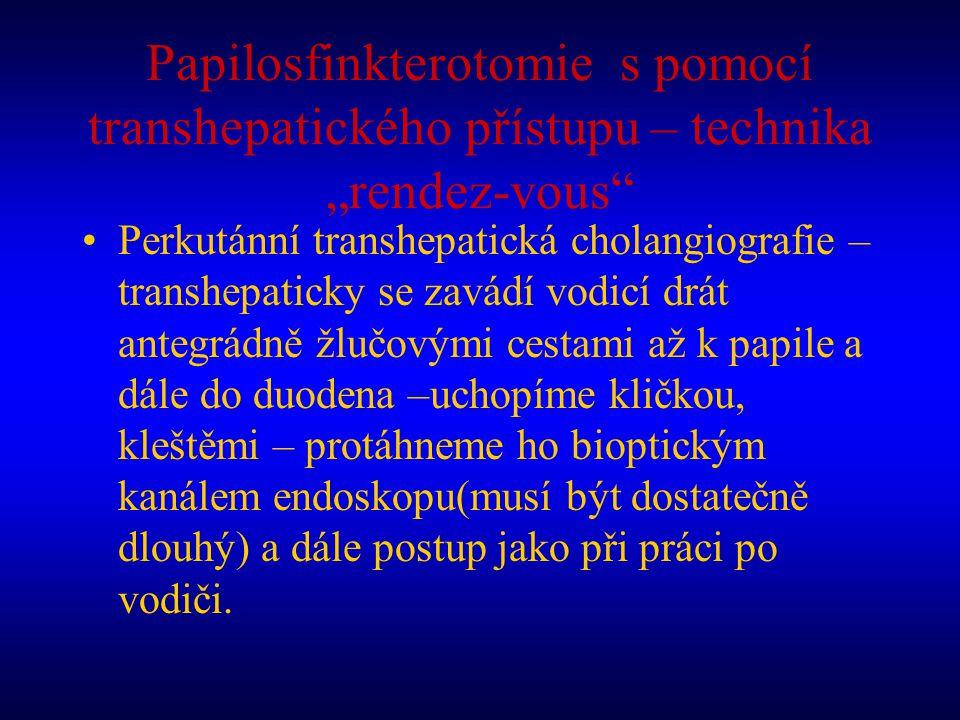 """Papilosfinkterotomie s pomocí transhepatického přístupu – technika """"rendez-vous"""" Perkutánní transhepatická cholangiografie – transhepaticky se zavádí"""