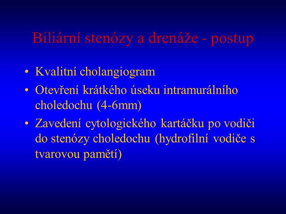 Biliární stenózy a drenáže - postup Kvalitní cholangiogram Otevření krátkého úseku intramurálního choledochu (4-6mm) Zavedení cytologického kartáčku p
