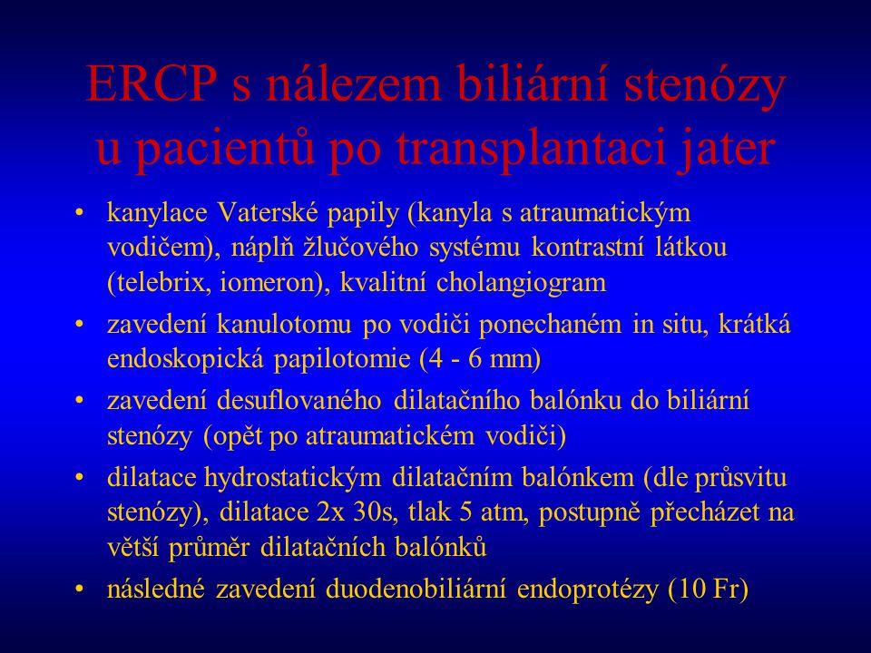 ERCP s nálezem biliární stenózy u pacientů po transplantaci jater kanylace Vaterské papily (kanyla s atraumatickým vodičem), náplň žlučového systému k