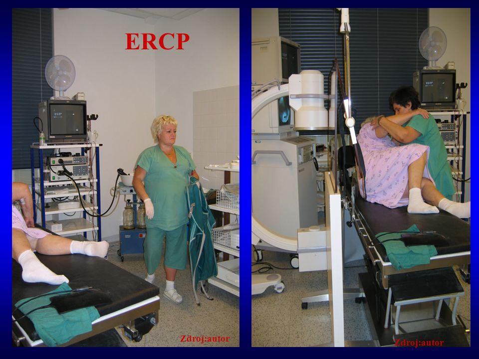 Přístrojová specifika Základní sestava – zdroj světla, endoskop s boční optikou se širokým pracovním kanálem 4,2mm (diagnostický 2,7mm), elektrochirurgickou jednotku RTG přístroj –např.C-rameno, ukládání snímků, odeslání do systému, tisk na papír, CD Řada akcesorií – kanyly, vodiče, papilotomy, kanulotomy,kočíky, extrakční a dilatační balónky, bužiové dilatátory, katetry pro nasobiliární drenáž,sety na závádění endoprotéz, endoprotézy,kleště, polypektomické kličky,litotryptory,klipovače, atd.