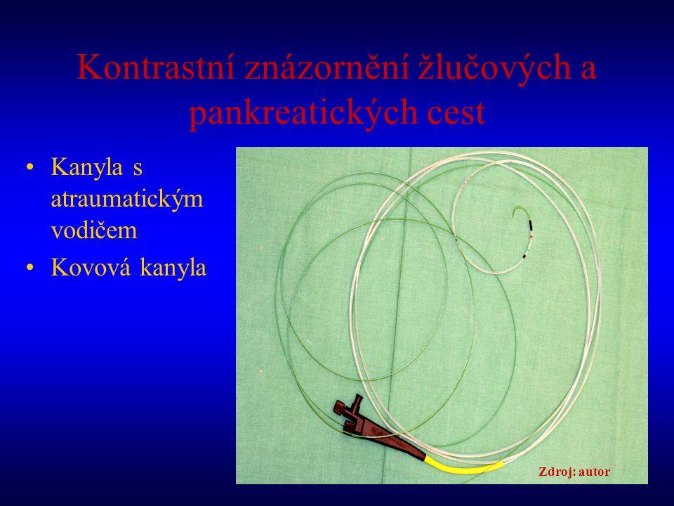 Kontrastní znázornění žlučových a pankreatických cest Kanyla s atraumatickým vodičem Kovová kanyla Zdroj: autor