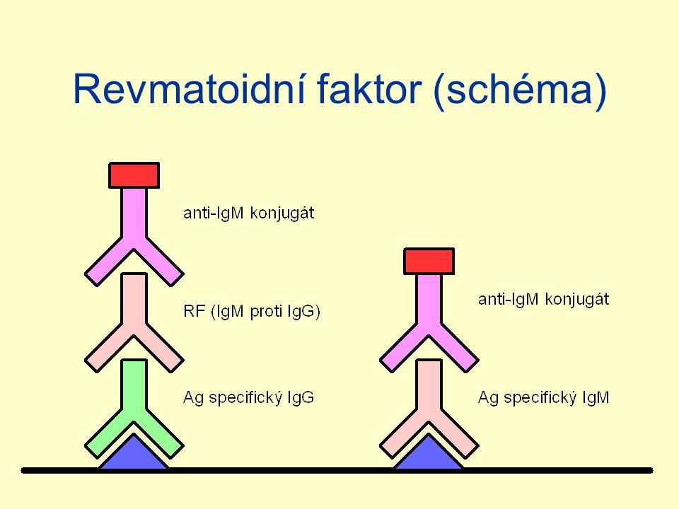 Revmatoidní faktor (schéma)