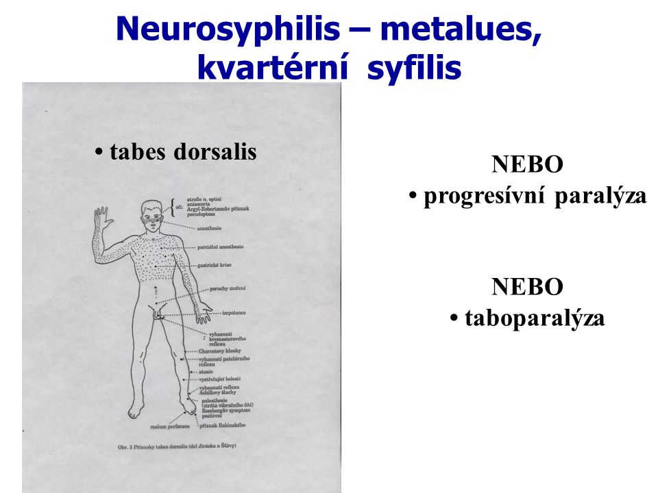 Neurosyphilis – metalues, kvartérní syfilis NEBO progresívní paralýza NEBO taboparalýza tabes dorsalis