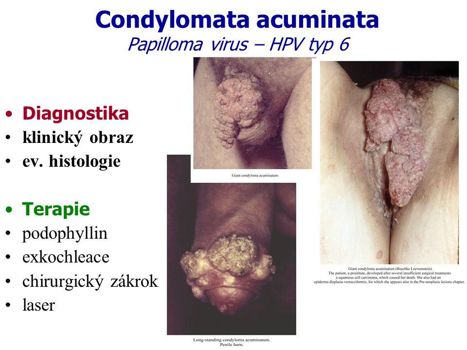 Condylomata acuminata Papilloma virus – HPV typ 6 Diagnostika klinický obraz ev. histologie Terapie podophyllin exkochleace chirurgický zákrok laser