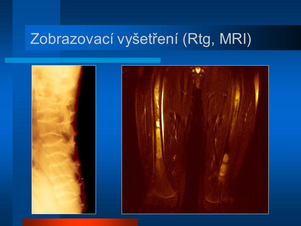 Zobrazovací vyšetření (Rtg, MRI)